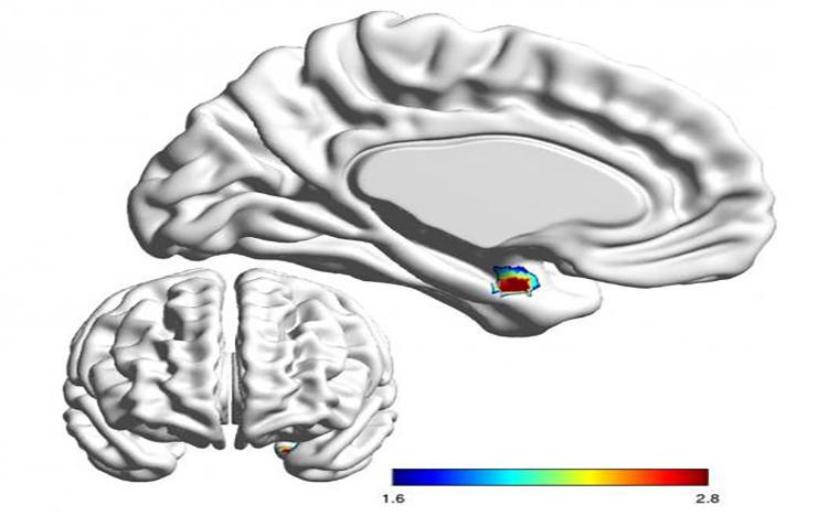Între bipolar și unipolar – o procedură fRMN de diagnostic diferențial